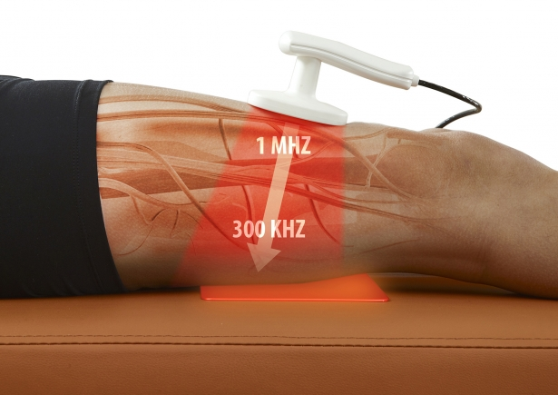 Diathermy explanation